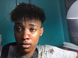 Kymani Wright shows his bruises he said he received from an irate man who demanded he remove one of his videos.