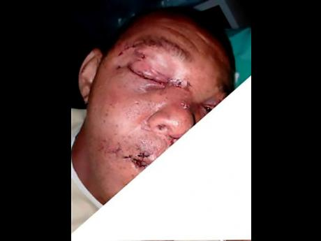 Oral Lee was attacked by the reptile when he and a friend went diving in the Rio Minho in Clarendon last September.